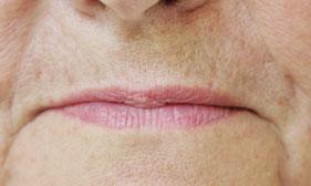 le vieillissement du visage du point de vue du dentiste jerome weinman. Black Bedroom Furniture Sets. Home Design Ideas
