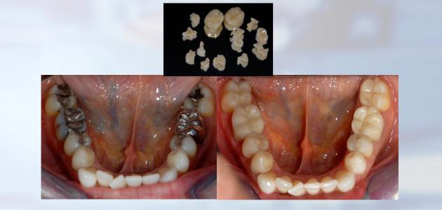 #inlay onlay-facettes céramiques veneers couronnes céramiques PRP plasma riche en plaquette implant dentaire - prothèse sur implant - greffes pré-implantaires - docteur Jérôme Weinman