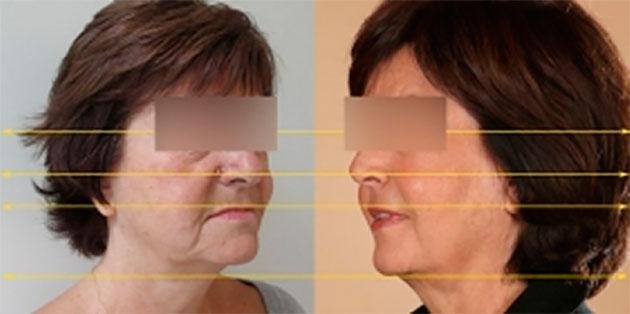 avant apres traitement visage esthétique dentiste
