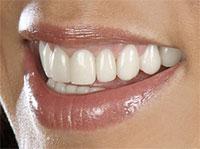 sinus lift - comblement de sinus - PRP plasma riche en plaquette implant dentaire - prothèse sur implant - greffes pré-implantaires - docteur Jérôme Weinman