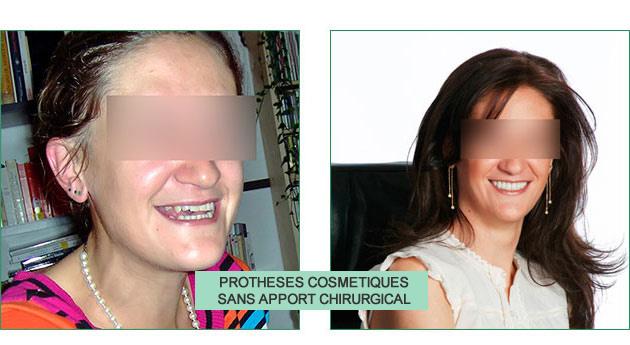 cas clinique audrey prothèses cosmétiques sans apport chirurgical