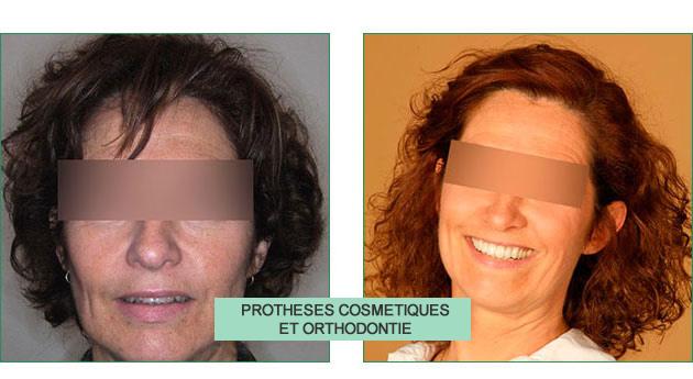 cas clinique isabelle prothèses cosmétiques et orthodontie
