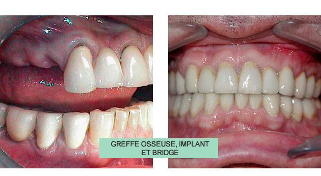 cas clinique jean greffe ,osseuse implant et bridge