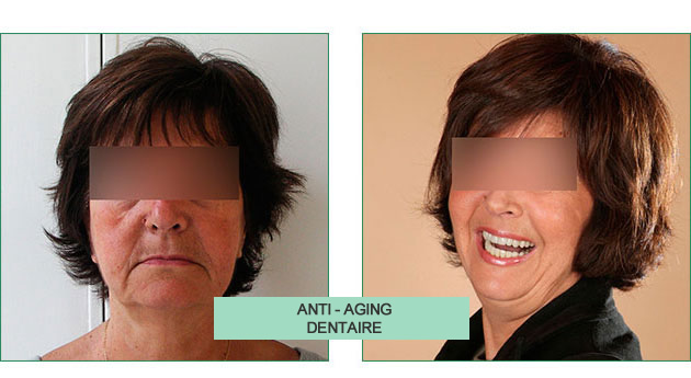 cas clinique monique anti-aging dentaire