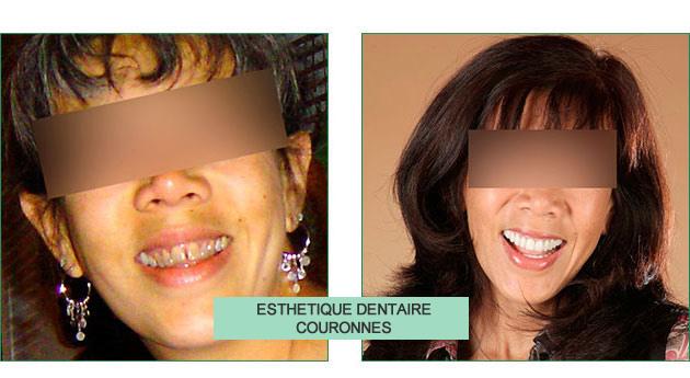 cas clinique Nathalie esthétique dentaire couronnes
