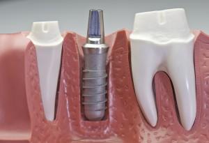 L'implant dentaire est une vis en titane