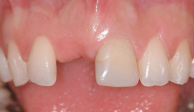 implant dentaire définition docteur Jérôme Weinman