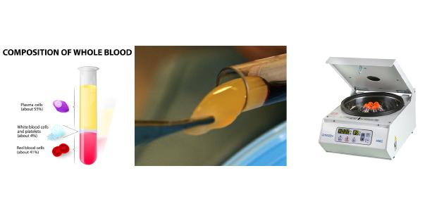 greffes osseuses pré-implantaires - PRP plasma riche en plaquette implant dentaire - prothèse sur implant - greffes pré-implantaires - docteur Jérôme Weinman