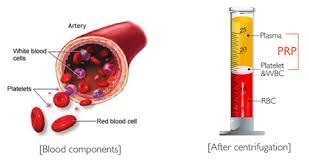platelet rich plasma plasma riche en plaquettes greffes osseuses