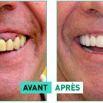 avant après cas clinique implants dentaires
