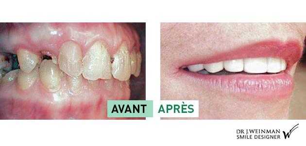dentophobie - PRP plasma riche en plaquette implant dentaire - prothèse sur implant - greffes pré-implantaires - docteur Jérôme Weinman
