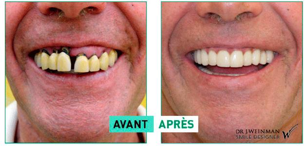 PRP plasma riche en plaquette implant dentaire - prothèse sur implant - greffes pré-implantaires - docteur Jérôme Weinman