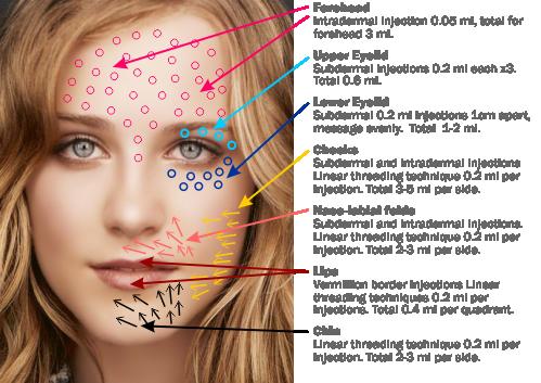 prp visage injection