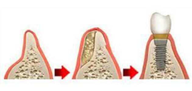 sinus lift - greffes osseuses - comblement de sinus - greffe pré-implantaire