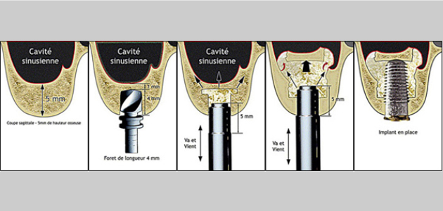 sinus lift greffes osseuses - comblement de sinus - greffe pré-implantaire