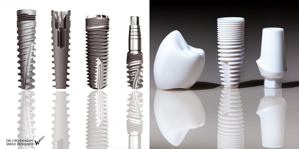 implant dentaire paris caroussel