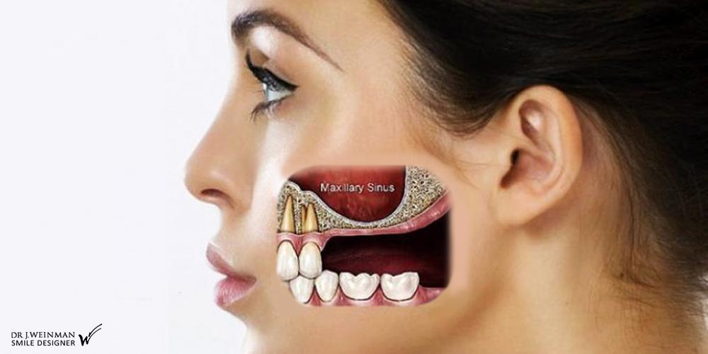 img greffe pré implantaire sinus