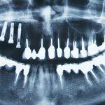 Radiographie d'implant supérieur droit