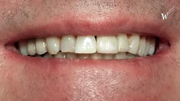 couronne céramique sur implant : incisive