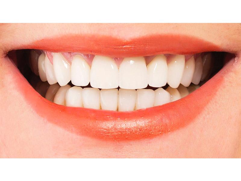 facette dentaire résultat dr jérôme weinman