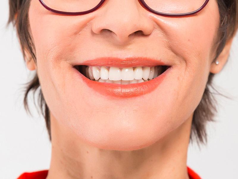 résultat facette dentaire paris