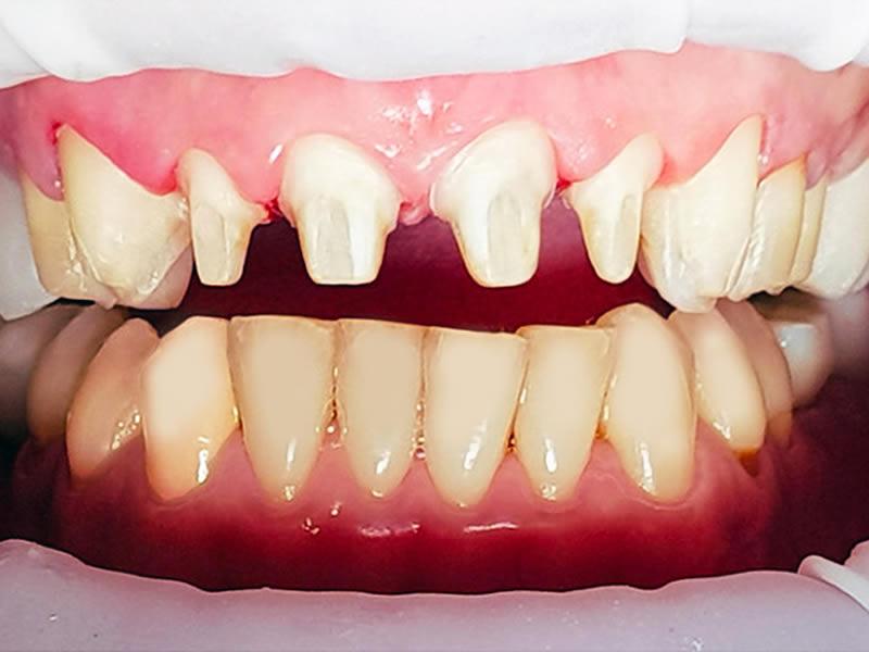 Exemple de cas clinique   Les facettes dentaires en porcelaine  traditionnelle avec une préparation dentaire 9fd1e9ac984e