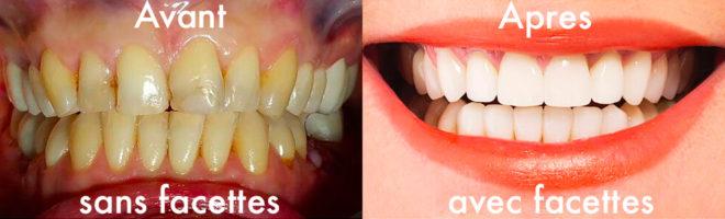 facette dentaires avant après Paris Dr Jérôme Weinman