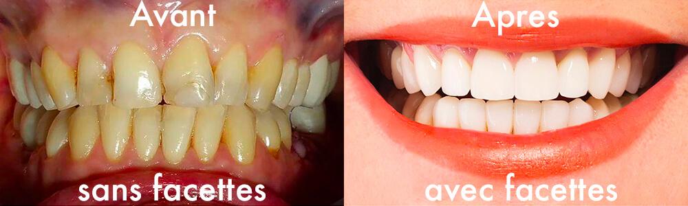 """2863d747b2b8fb La pose de facettes céramiques dentaires en porcelaine stratifiée ou  """"dental veneers"""" est la technique de choix pour résoudre les problèmes  d esthétique du ..."""