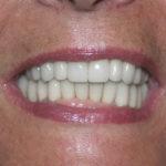 arcades dentaires restaurées