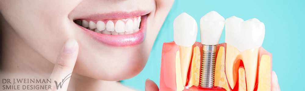 La pose d'un implant dentaire par le Docteur Jérôme Weinman, chirurgien dentiste à Paris et médecin dentiste à Genève.