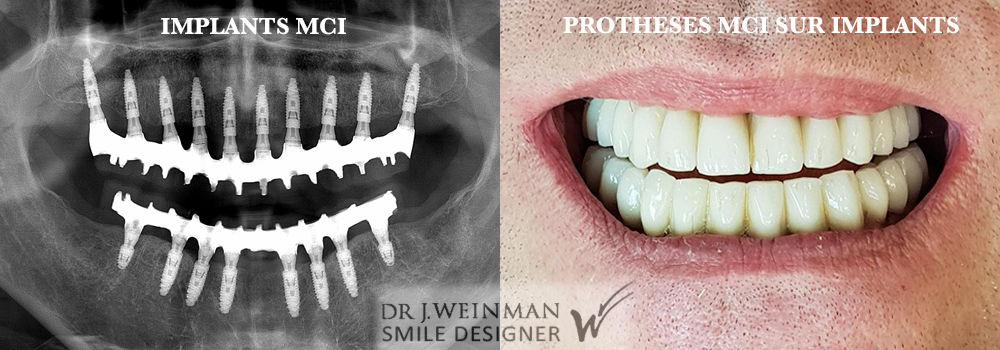 Mise en charge immédiate d'une prothèse dentaire ou MCI lors de la pose d'implants dentaires pour reconstruire votre sourire par le docteur Jérôme Weinman chirurgien dentiste à Paris et médecin dentiste à Genève.