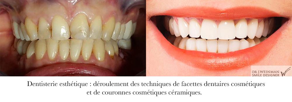 facette dentaire dents du sourire