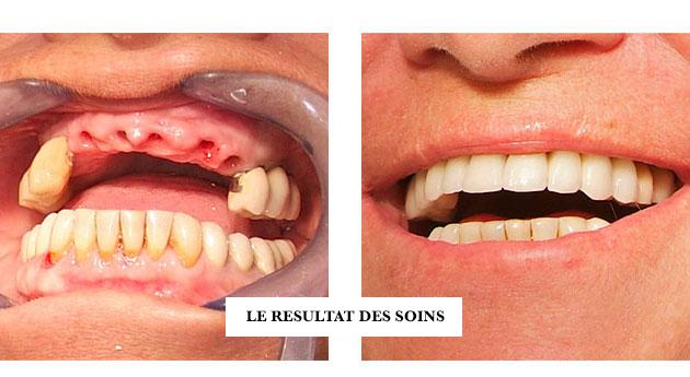Remplacement d'une dent du sourire comme un incisive centrale par un implant dentaire et une couronne cosmétique