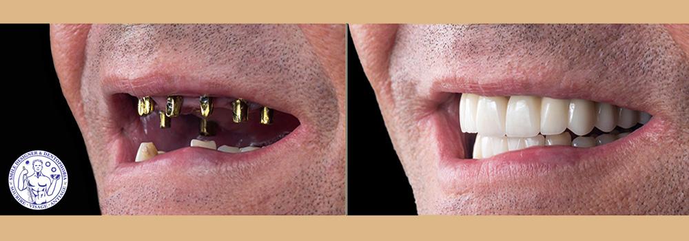 dentisterie esthétique bridge dentaire céramique