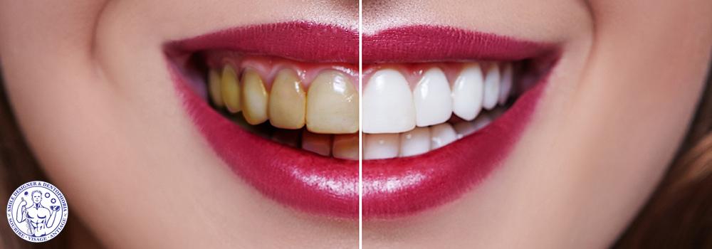 rajeunir votre sourire et l'expression de votre visage  facettes dentaires chirurgie orale aux facettes dentaires, et la chirurgie orale implants dentaire greffes osseuses greffe de gencives PRF et  PRP et cellules souches