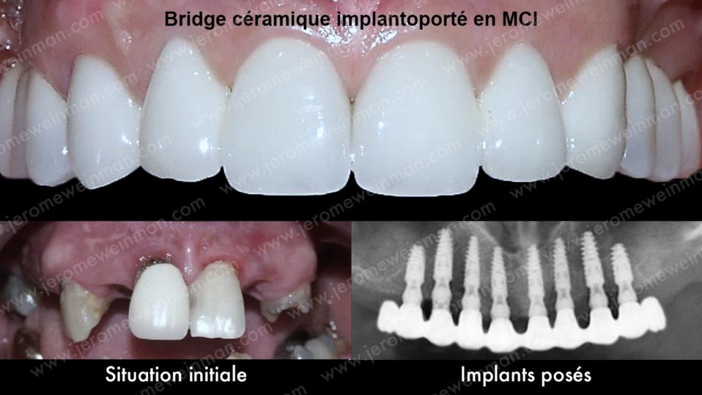 Mise en charge immédiate MCI implants dentaires prothèse cosmétique implanto-portée nouveau sourire chirurgien dentiste médecin dentiste