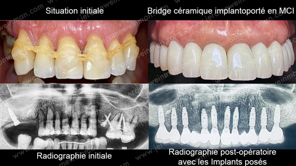 Mise en charge immédiate des implants dentaires prothèse cosmétique implanto-portée nouveau sourire