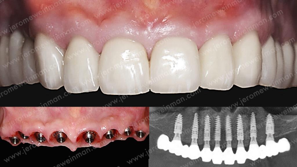mise en charge immédiate ou MCI bridge implantoporté extraction implantation mise en charge immédiate des implants dentaires