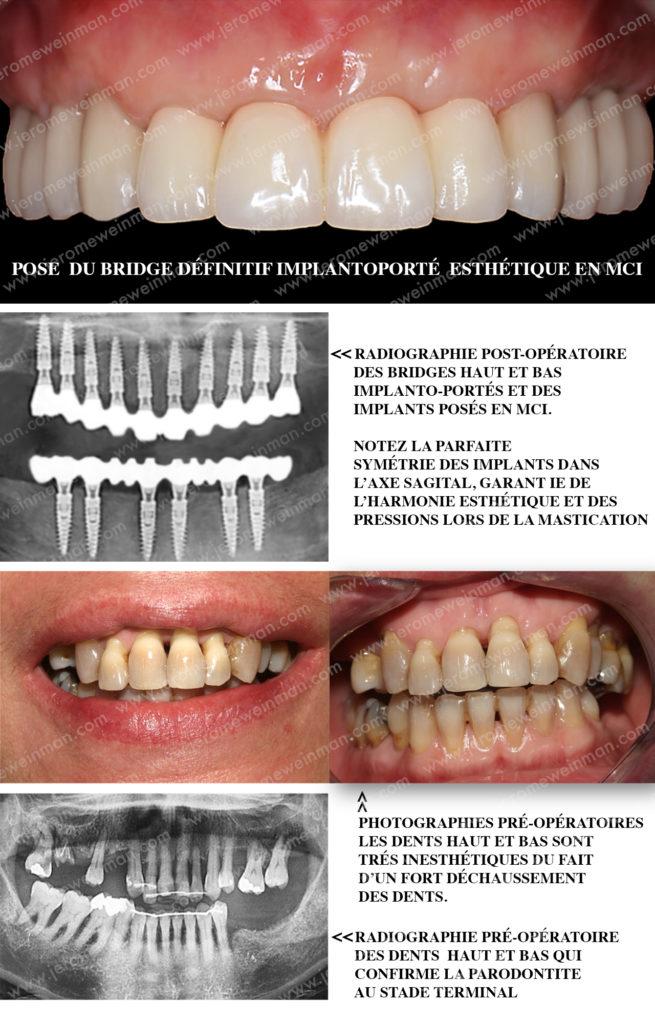 Le remplacement des dents grâce à une Mise en charge immédiate des implants dentaires par une prothèse cosmétique implanto-portée de prémolaire droite à prémolaire gauche pour un nouveau sourire en quelques jours, par le docteur Jérôme Weinman chirurgien dentiste à Paris et médecin dentiste à Genève.