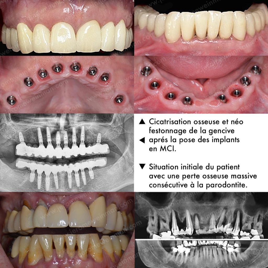 Comment remplacer toutes les dents par des implants dentaires en Mise en Charge Immédiate (MCI) grâce à une prothèse cosmétique implanto-portée et avoir un nouveau sourire en quelque jours, par le docteur Jérôme Weinman chirurgien dentiste à Paris et médecin dentiste à Genève?